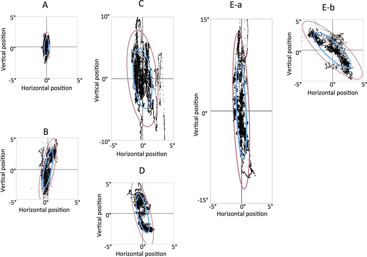 Fixation stability of the upward gaze in patients with myasthenia ...